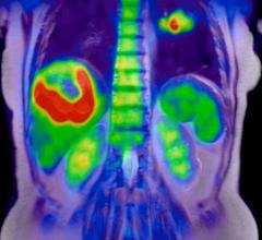 Blue Earth Diagnostics, U.S. headquarters, management expansion, PET imaging agent