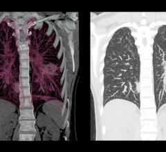 Matrix Analytics Beginning Validation of Deep Learning Lung CT Tools