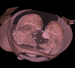 Automatic Deformable Alignment Significantly Reduces Radiologist Time to Match Lung Nodule Locations