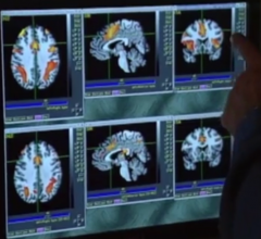 Older Patients Recover More Slowly from Concussion