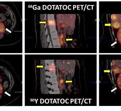 neuroendocrine tumors, NET, radiotherapy dose, PET, SPECT, SNMMI 2016