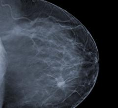 whole breast radiotherapy, early breast cancer, IMRT, European study