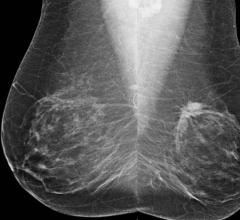 mammography, breast cancer, computer aided detection, image analysis