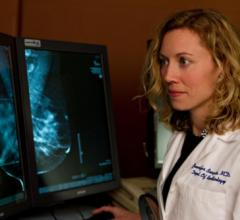 Gender, Race Shape How Barriers to Breast Cancer Screening Are Addressed
