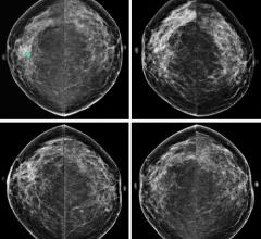 Study Finds Women With High Breast Cancer Risk Declining MRI Screening