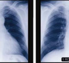 Study Shows Improved Detection of Lung Cancer With CAD Technology