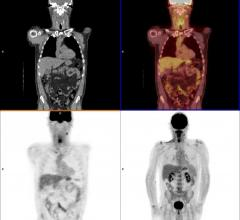 IBA Molecular, acquisition, Mallinckrodt Nuclear Imaging, nuclear imaging
