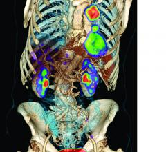 radiotracer, cancer imaging, diagnostics, PET, 18F-FLT