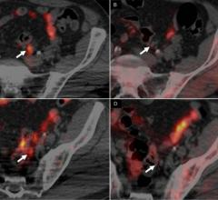 In scans of a 62-yr-old man with Gleason 4+3 PCa treated with radical prostatectomy, with rising PSA level (1.32) and PSA doubling time of 3.7 months, 64CuCl2-PET/CT images revealed 2 positive small left iliac lymph nodes (A,C), whereas 18F-Choline PET/CT (B,D) was negative (arrows).