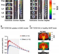 PET, neuroinflammation, multiple sclerosis, MS, Adam Rosenberg, SNMMI 2016