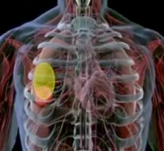$45 Million Investment Accelerates Development of ViewRay's MRI-Guided Radiation Therapy System