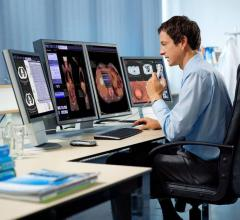 Siemens Healthineers Announces FDA Clearance of syngo.via VB30 Molecular Imaging Software