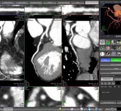 coronary CT angiography, CCTA, CAD, coronary artery disease, alcohol consumption, RSNA 2016