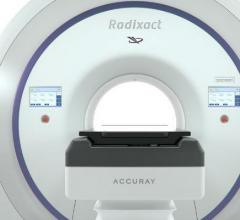 Accuray, Radixact Treatment Delivery System, Miami Cancer Institute, first patients