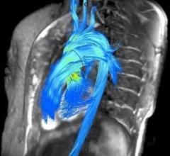 Arterys, 4-D Flow software, cardiac MRI, RSNA 2016
