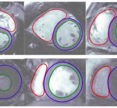 Arterys, Cardio DL cloud application, automated ventricle segmentation, MRI, FDA clearance
