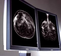Joint Venture Partnership Opening 16 New Breast Screening Sites in Texas