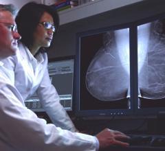 breast cancer risk, machine learning algorithm, Houston Methodist, mammograms