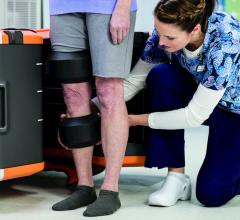 Carestream, OnSight 3-D Extremity System, orthopedic imaging, shipping in December, RSNA 2016