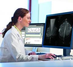 Digital Mammography DREAM Challenge, open-source competition, accuracy