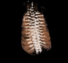 ContextVision, 3-D ultrasound, SkeletalView, patent, fetal skeleton viewing, RSNA 2017