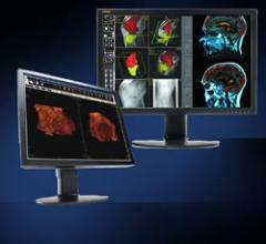 Double Black Imaging Introduces New Clinical Displays