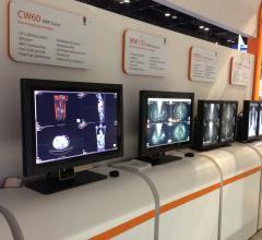 Double Black Imaging Wide Corporation LED Displays RSNA 2012 Mobile App