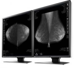 TMIST, lead-in study, tomosynthesis, mammography, The Ottawa Hospital Breast Health Centre, Canada