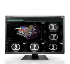 Eizo, RadiForce RX660 medical monitor, RSNA 2016, 6-megapixel