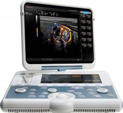 Esaote Receives FDA Clearnce for Portable MyLab Gamma Ultrasound System