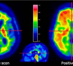 Alzheimer's, tau PET tracers, positron emission tomography, dementia, research