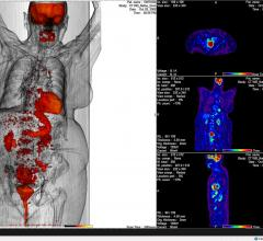 Mirada Medical, Alliance Medical, NHS, National Health Service, United Kingdom, PET/CT, cancer diagnostics