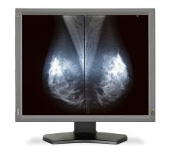NEC Displays, FDA clearance, MultiSync MD211G5, tomosynthesis, FFDM