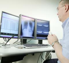 CMS, clinical quality measures, AHIP, release