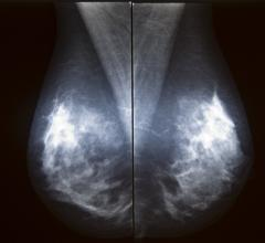 digital mammography trends, improved cancer detection, more biopsies, Radiology journal, BCSC study, Breast Cancer Surveillance Consortium