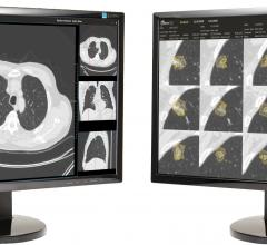 Third Annual Data Science Bowl Winners Advance Low-Dose CT Lung Cancer Screening