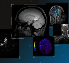 neurological disorders, MRI