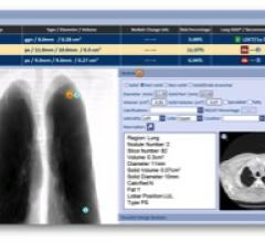 RADLogics, RSNA 2015, AlphaPoint image analysis software, lung cancer screening app, Chest CT Scan Module