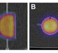 SPECT-CT, 3-D printing, University of Wurzburg, Germany, Johannes Tran-Gia, dosimetry calibration