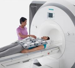 Siemens, Biogen, joint development, MRI tools, multiple sclerosis