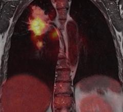 Imaging agent helps predict success of lung cancer therapy