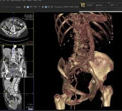 Telemis Medical PACS, version 4.7, JFR, integrated functionality, RSNA 2015