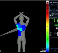 Toshiba, Dose Tracking System, DTS, cardiovascular x-ray
