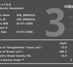 fibroglandular breast density, breast cancer screening performance, Breast Cancer Research and Treatment study, Volpara Density