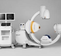 Whale Imaging, G-Arm Duo, mobile C-arm, FDA clearance, launch, RSNA 2017