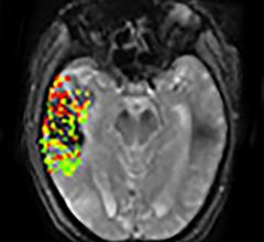 DEFUSE-2 studym, MRI, brain bleeding risk, post-stroke treatment, NIH