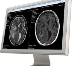 Siemens Healthineers, SyntheticMR AB, SyMRI post-processing software, cooperation agreement, MRI