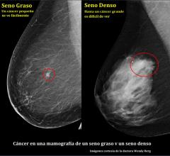 Spanish, breast health, breast density, DenseBreast-info.org