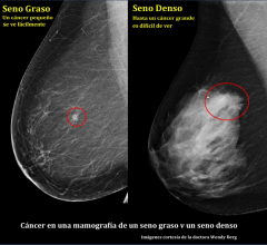 Spanish, breast health, breast density, DenseBreast-info.org