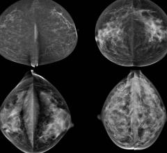 breast density, mammography, independent risk factor, RSNA 2015